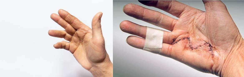 Tumoren der Hand