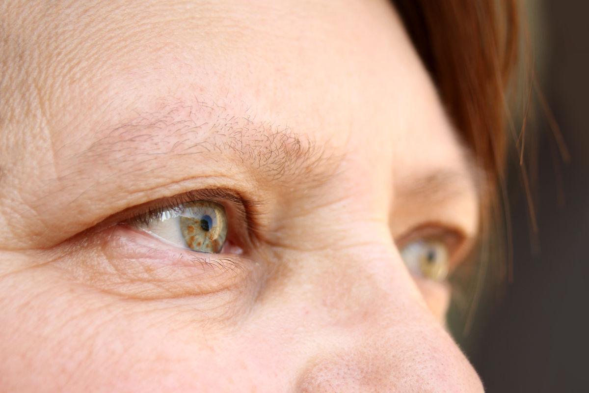Korrektur der Augenlider