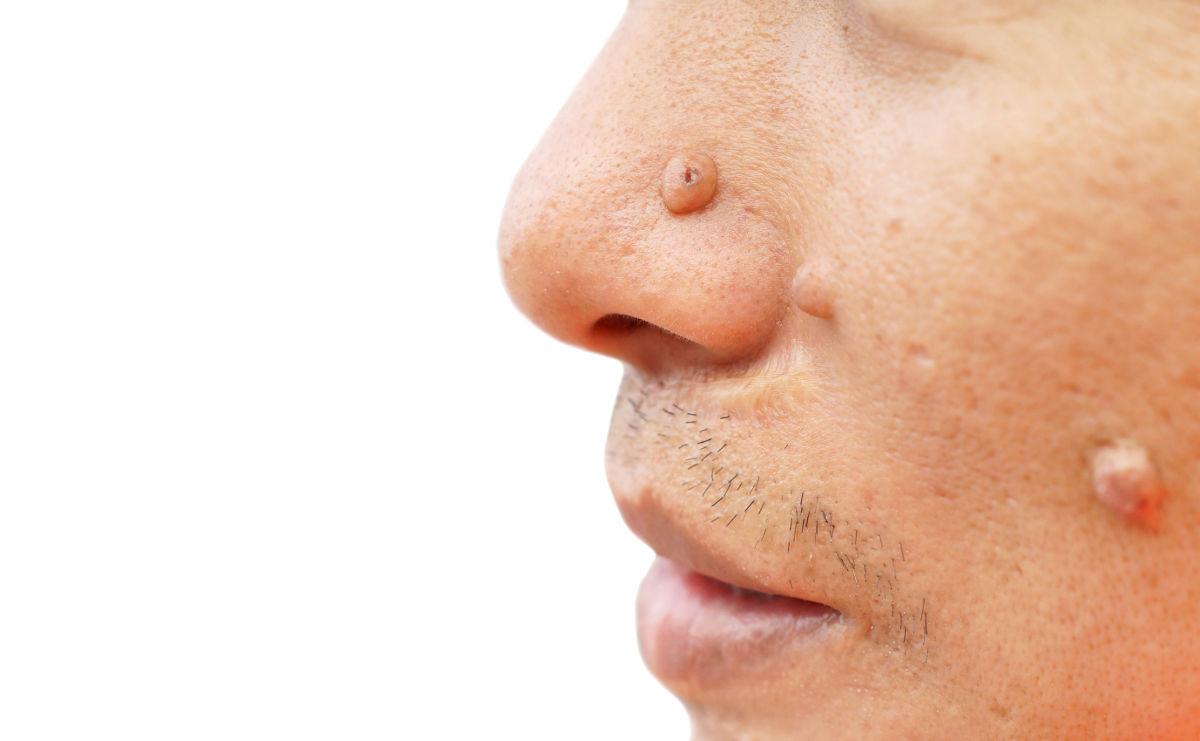 Rekonstruktive Gesichtschirurgie